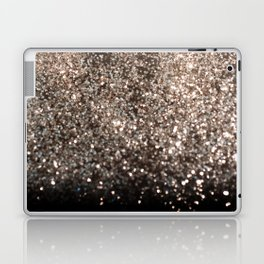 Sparkling GOLD BLACK Lady Glitter #1 #decor #art #society6 Laptop & iPad Skin