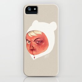 Occupational Hazard iPhone Case