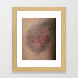 Numb Framed Art Print