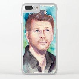 Misha! Clear iPhone Case