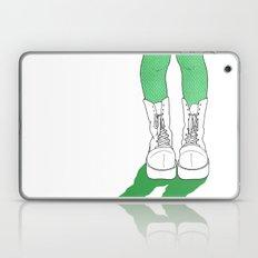 Rainbow Gossip - Green Laptop & iPad Skin
