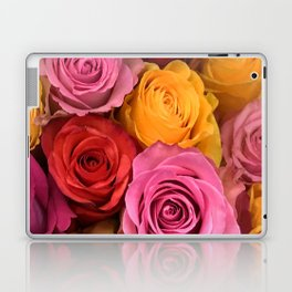 ALL Colors Are Beautiful - With Roses AND People! Laptop & iPad Skin