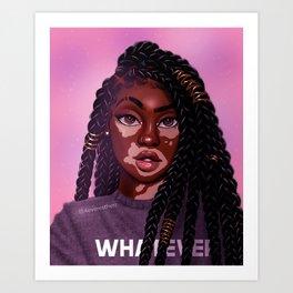 VitiligoQueen Art Print