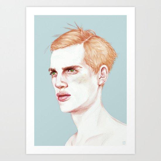 Boy Bruised Art Print