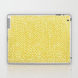 Hand Knit Yellow Laptop & iPad Skin