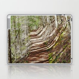 FOREST OF PARALLEL SHADOWS Laptop & iPad Skin