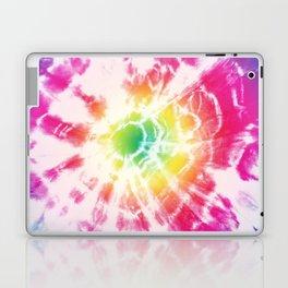 Tie-Dye Sunburst Rainbow Laptop & iPad Skin