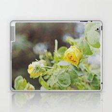 Rosa amarilla Laptop & iPad Skin