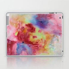 Sunburst Laptop & iPad Skin
