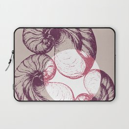 hear the sound Laptop Sleeve
