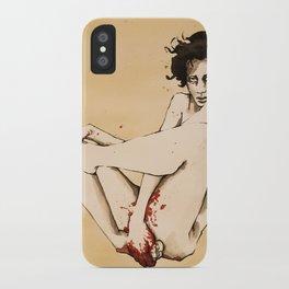 579831 iPhone Case