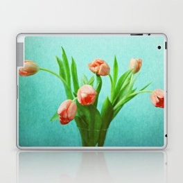 Delightful Display Laptop & iPad Skin