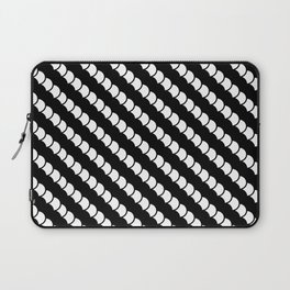 Spinal Stripes Laptop Sleeve