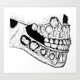 Hyperdontia Art Print