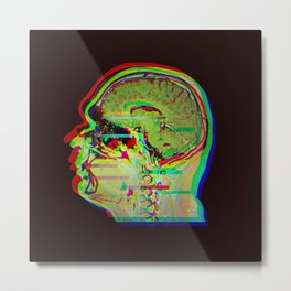 Brain Xray Glitch Art Metal Print