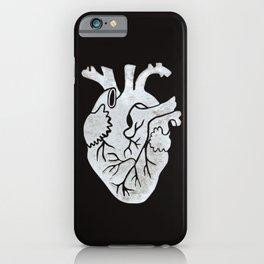 Anatomical Human Heart: Unusual Love Gift iPhone Case