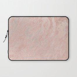 Rose Gold Foil Laptop Sleeve