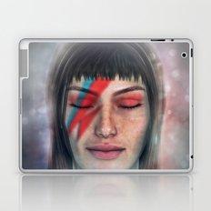 omaggio a Bowie Laptop & iPad Skin