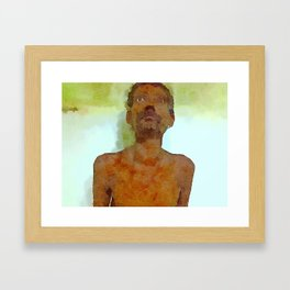 Graves Diseases Framed Art Print