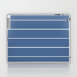 Striper in Blue Laptop & iPad Skin