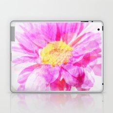 Love Shining Through Laptop & iPad Skin