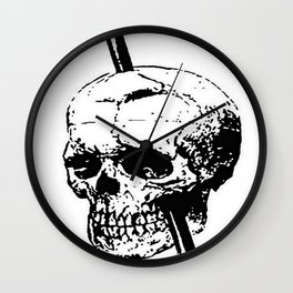 The Skull of Phineas Gage Vintage Illustration Wall Clock