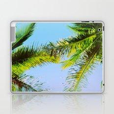 Palm Trees Tropical Photography Laptop & iPad Skin