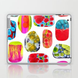 Rock Solid Laptop & iPad Skin