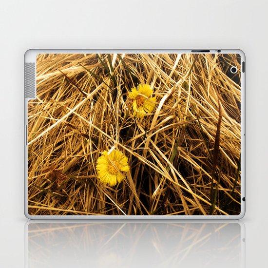 We 2 Laptop & iPad Skin