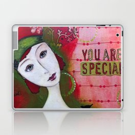 You are Special Laptop & iPad Skin