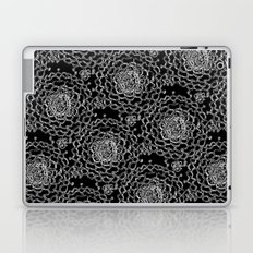 A Crowd of Mums (black | white) Laptop & iPad Skin