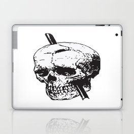 Frontal Lobotomy Skull Of Phineas Gage Vector Isolated Laptop & iPad Skin