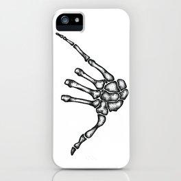 Hang Loose  iPhone Case