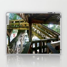 Tree house @ Aguadilla 2 Laptop & iPad Skin