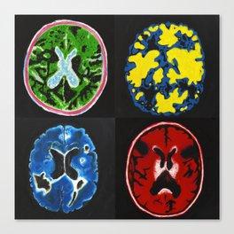 4 Brain Scans Canvas Print