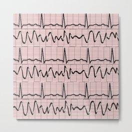 Cardiac Rhythm Strips EKG Metal Print