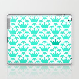 Crown background #society6 #decor #buyart #artprint Laptop & iPad Skin