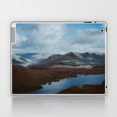 The Hills of Connemara, Ireland Laptop & iPad Skin