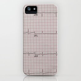 Let's Play Doctor iPhone Case