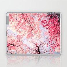 Color Drama I Laptop & iPad Skin
