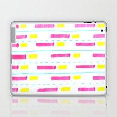 Pink and Lemon Stripes  Laptop & iPad Skin