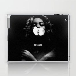B E Y O N C É Laptop & iPad Skin
