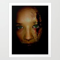 wounded Art Print