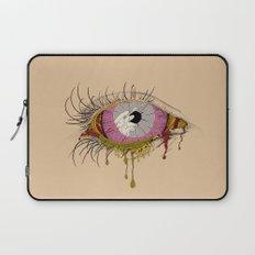 Sight of the Surgeon Laptop Sleeve
