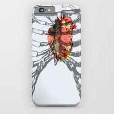 Ribcage iPhone 6s Slim Case