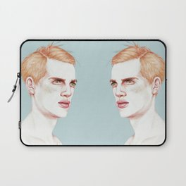 Boy Bruised Laptop Sleeve