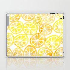 Yellow lemon in watercolor Laptop & iPad Skin