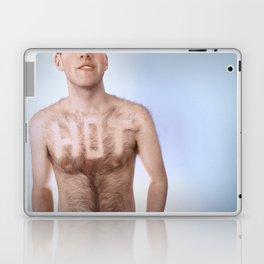 HOT Laptop & iPad Skin