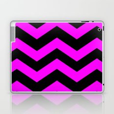 Black & Pink Chevron Lines  Laptop & iPad Skin