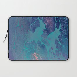 Forthcoming - An Abstract Laptop Sleeve